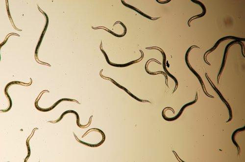 паразиты в человеке фото